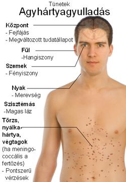 Helmint gyógyszer sokféle ember számára