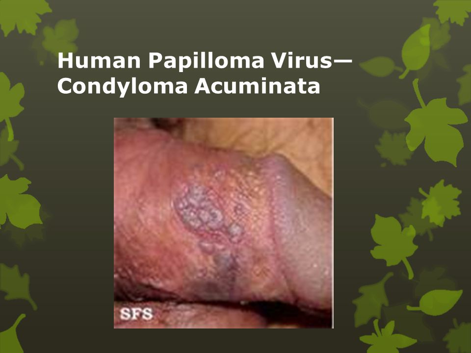 a condyloma fertőzés útjai schematosomiasis haematobium