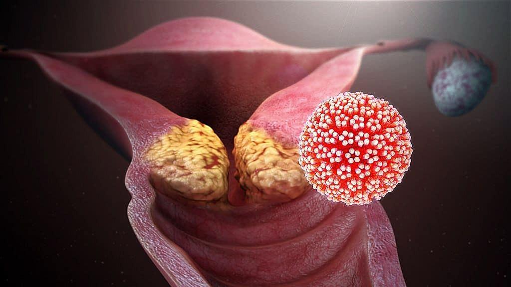 papillomavírus illóolaj-kezelés vastagbél méregtelenítő fürdő