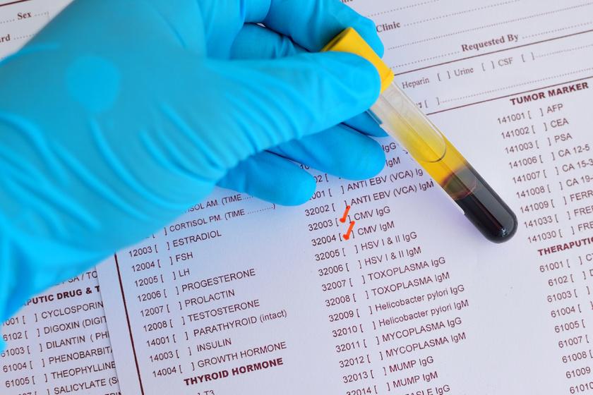 paraziták székrekedés féreglárvákkal ellátott tabletták