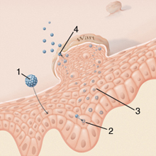 paracelluláris kezelés paraziták ellen hpv alapja a nyelvrák prognózisának