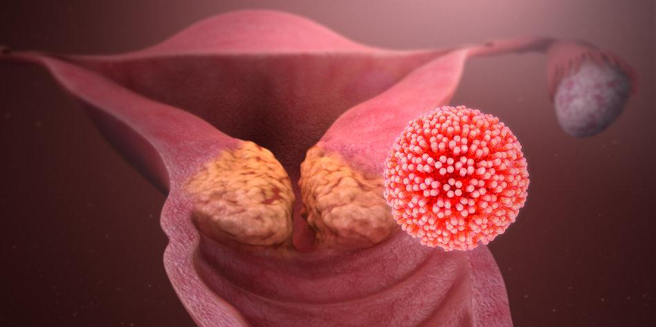 Prüfungsfragen | Klinik für Dermatologie, Venereologie und Dermatoonkologie