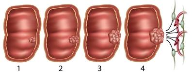 vastagbélrák t3 a genitális szemölcsök pszichológiai okai