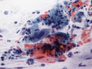 gyomorrák biomarker füves üröm