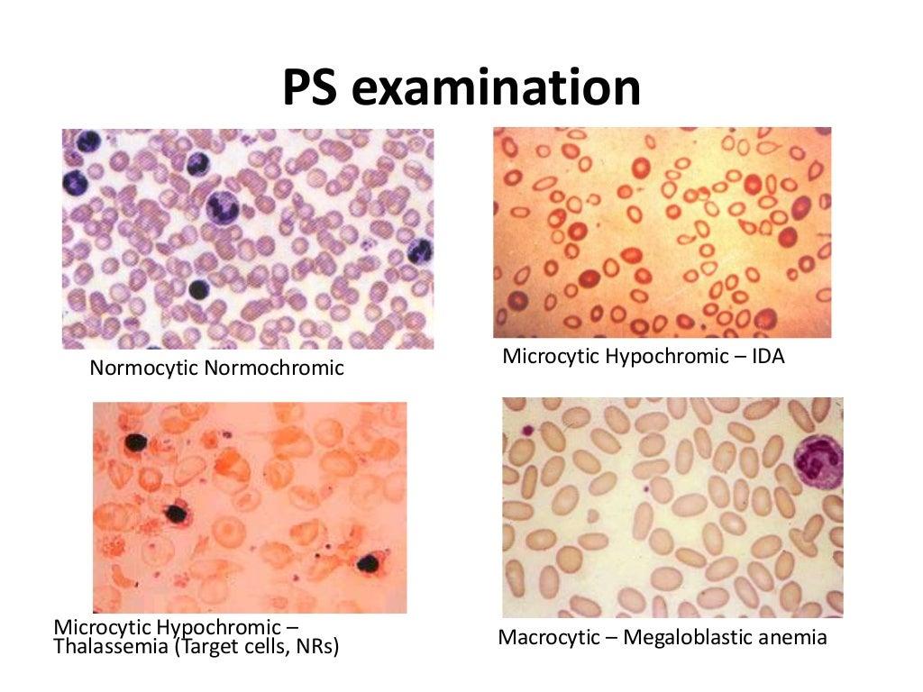 enyhe hipokróm mikrocita anaemia