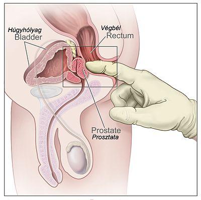 Férfi sterilizációs műtét (Vasectomia)