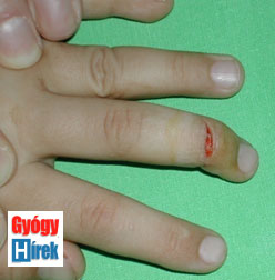 kezelés az ujjak között
