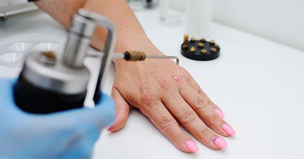 mit csinál a szemölcs az ujján oryzae helminthosporium pengertian
