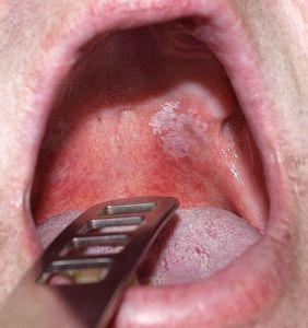 Endoral® – a szájkomfort: sejtvédelem, regeneráció, hidratálás!