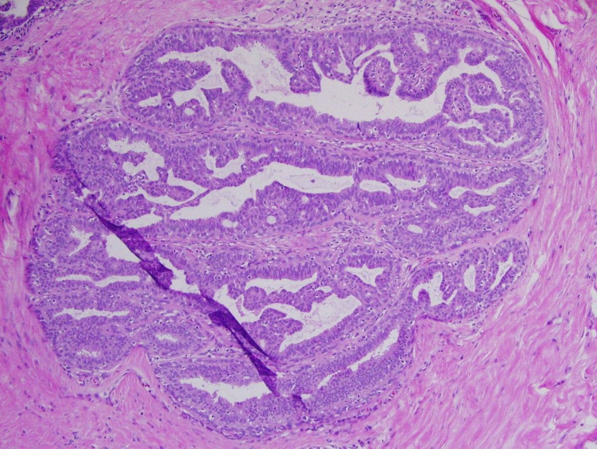papilloma és hiperplázia