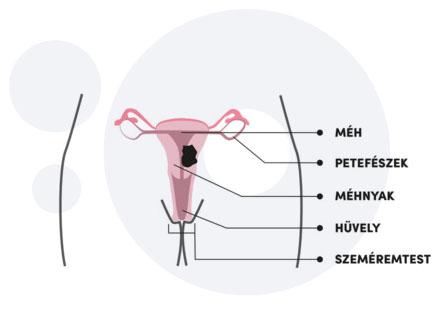 emberi féregbetegség hermafrodita csengő vagy sem