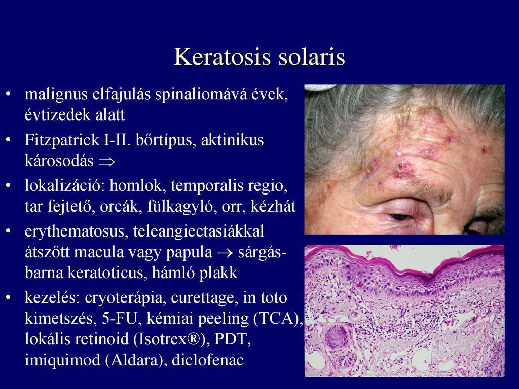keratoticus papilloma jelentése