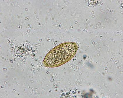 pinworm lamblia hpv vírus warzen entfernen