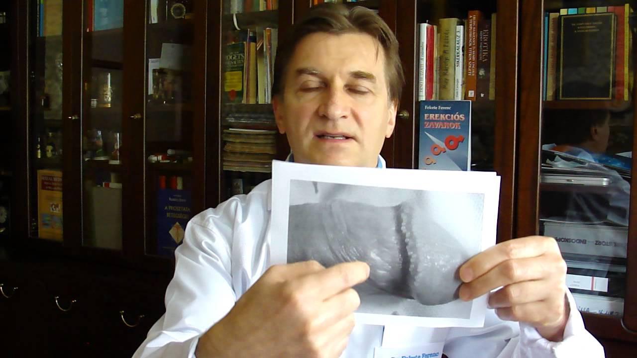 condyloma fórum kezelése hashártya rák mri