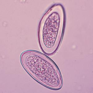 enterobius vermicularis nitazoxanid prosztatarák hasi nyirokcsomók