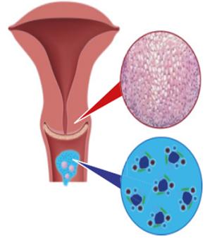 terhes papillomavírus-kezelés
