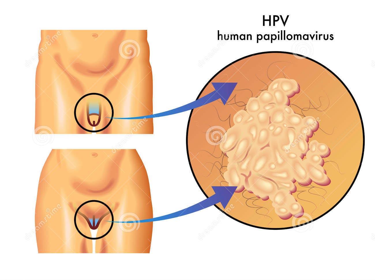 papilloma vírus donne