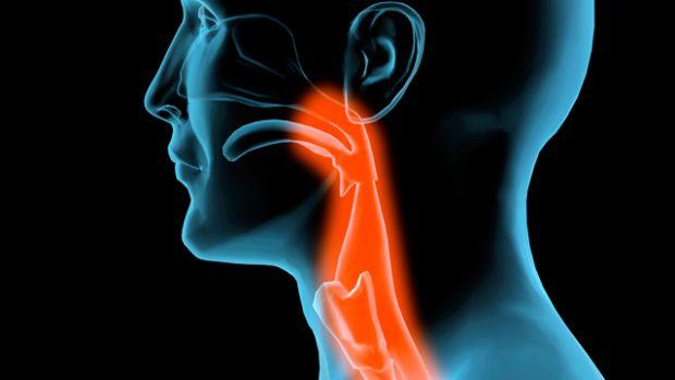 a nyaki rák fáj