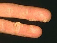 Lehetséges-e a papillomákat a bőrön szakítani
