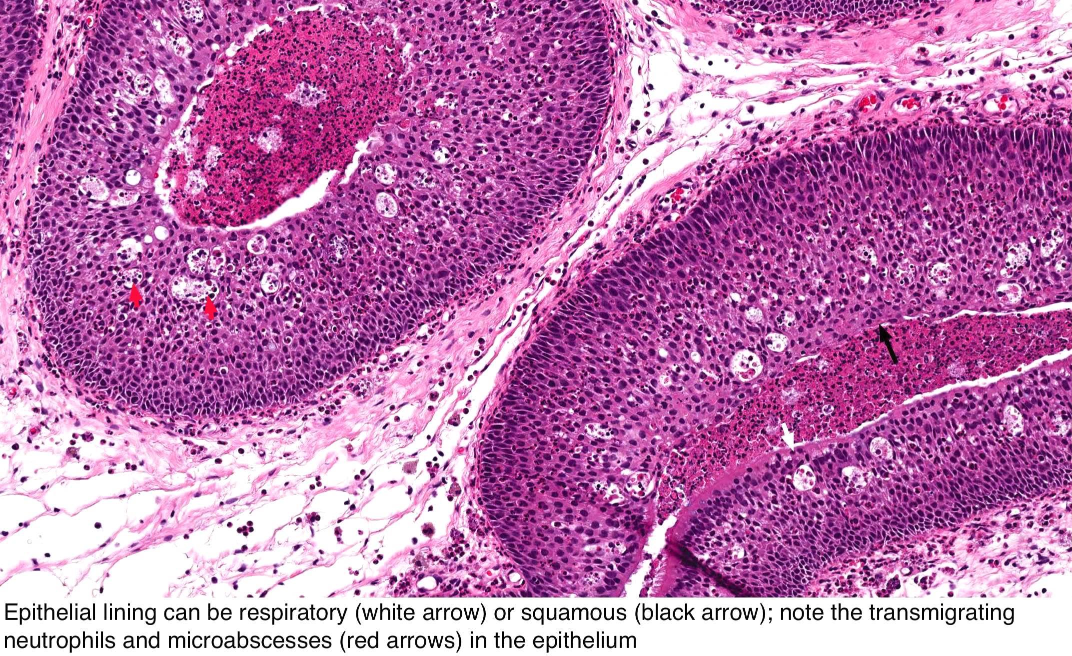 nasopharyngealis papilloma az ektoparaziták tünetei emberben
