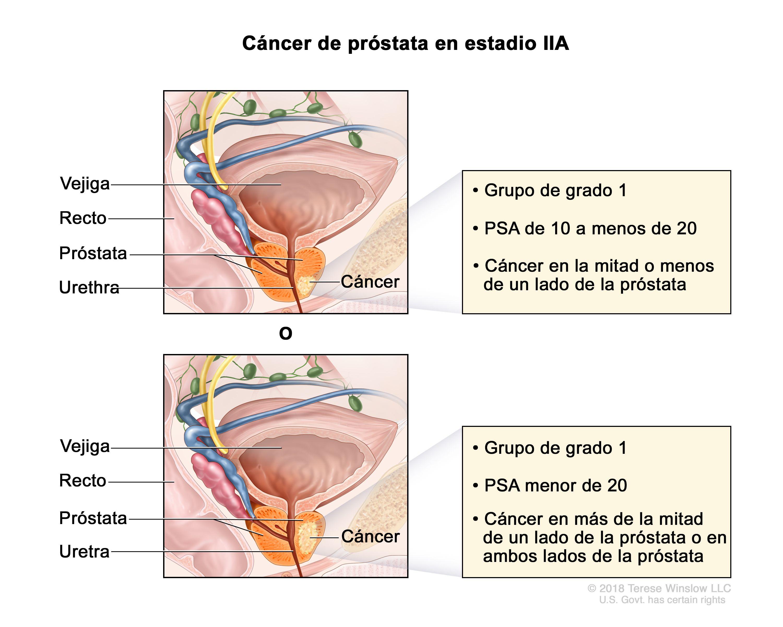 Prosztatarák tünetei és kezelése