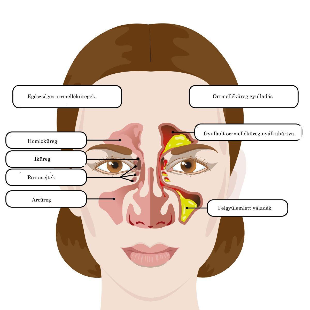 adn humán papilloma vírus 16. tippje