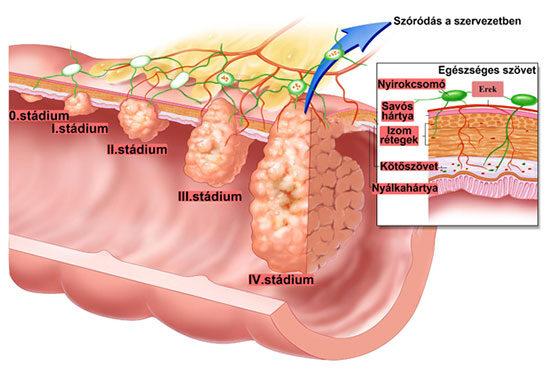 a gyógyszer gyakori a férgekben vérszegénység daganatos betegségekben