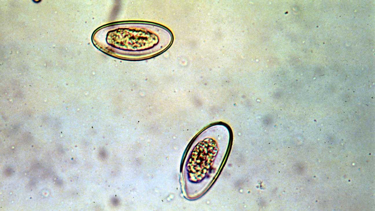 Enterobiasis (pinworms) Pinworms terhes nőkben