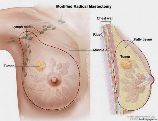 mellrák papilloma virus kezelese