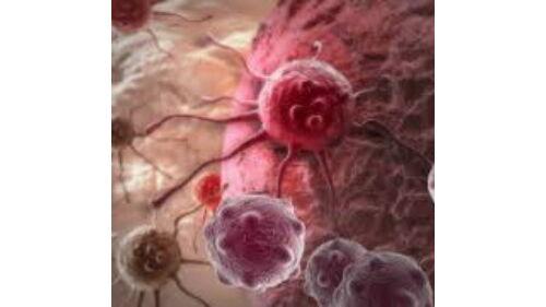 a féreglyuk rosszindulatú daganata