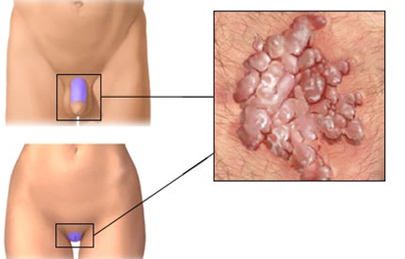 genitális szemölcsök hogyan kell kezelni őket véres giardia széklet