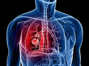 a helmintusok kezelése a tüdőben