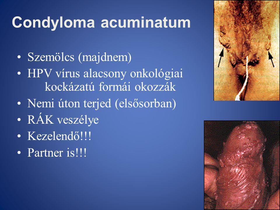emberi papilloma vírus és rák májtisztító árak
