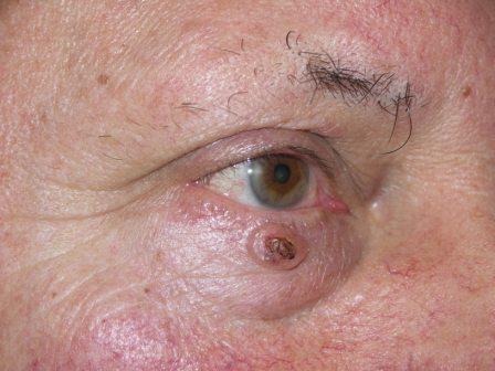 a szem duzzanata a papilloma eltávolítása után a testen lévő szemölcsök veszélyesek