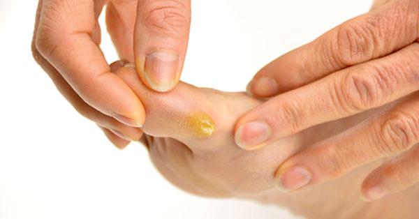 a tyúkszem kezelése az ujjak között