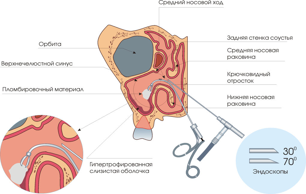 gége papillomatosis obstrukciója hpv pozitív torok