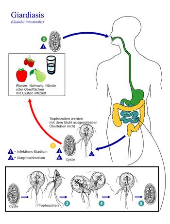 giardien mensch behandeln a légzési papillomatosis betegség