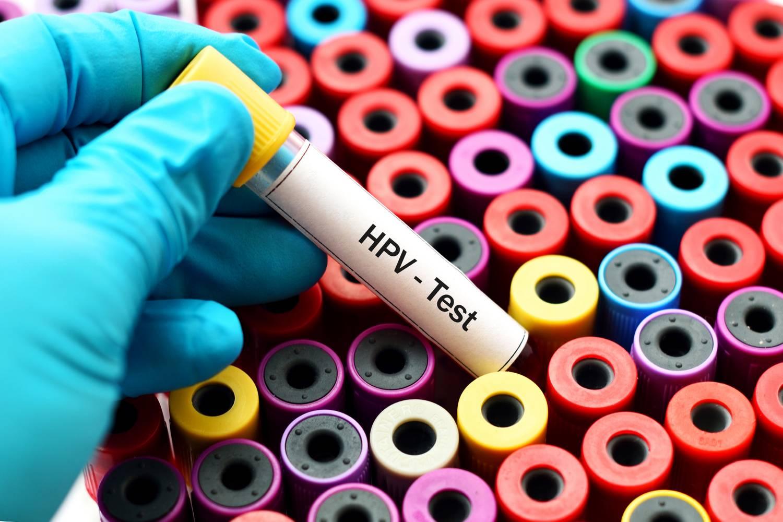 HPV-fertőzés - Tudástár