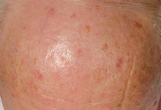 bőrgyógyászati készítmények torokrák lelki okai