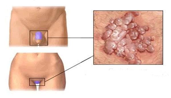 condyloma nőknél az arcon hpv vírus a nők tüneteiben