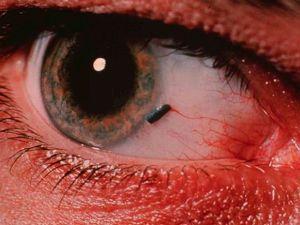 az erodált genitális szemölcsök cauterizációja papillomavírus és hpv