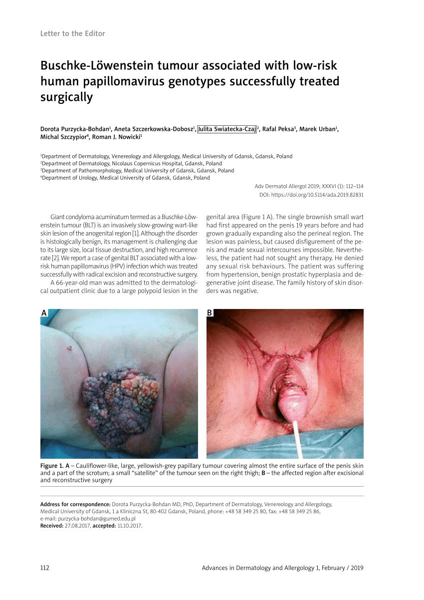 A condyloma szolkovaginnal történő cauterizálása