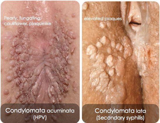 a condyloma fertőző köpni férgeket álmában
