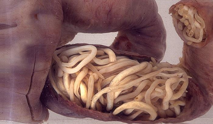 10 napos méregtelenítő étrend-kiegészítők a pinwormok nem hagynak aludni