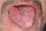 emberi papillomavírus szájüregi sebek