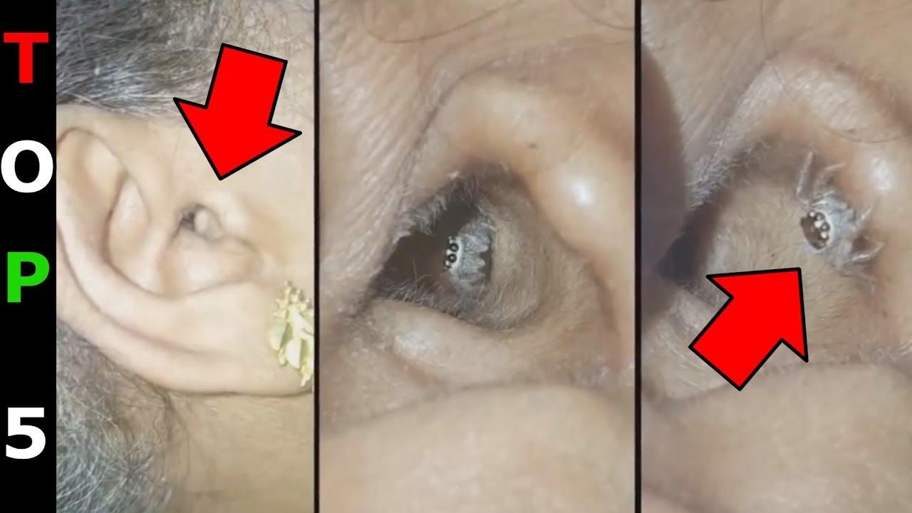 szemölcsök a szájüregben gyomorrák első tünetei