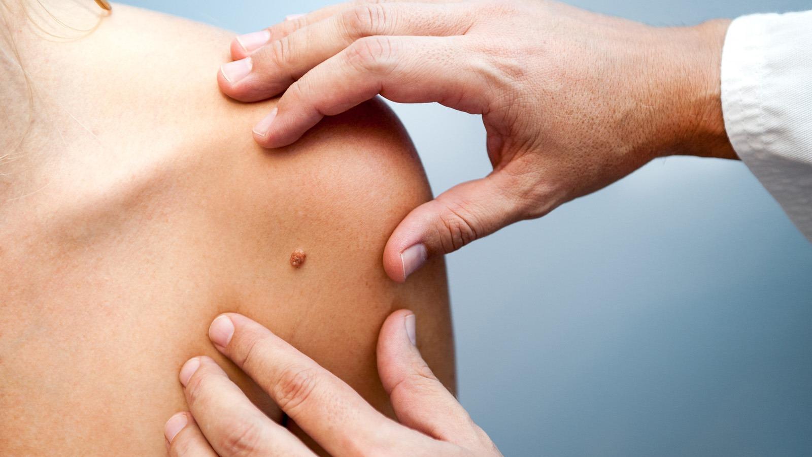 HPV tévhitek és tények, Hogyan lehet gyorsan megszabadulni a genitális szemölcsöktől