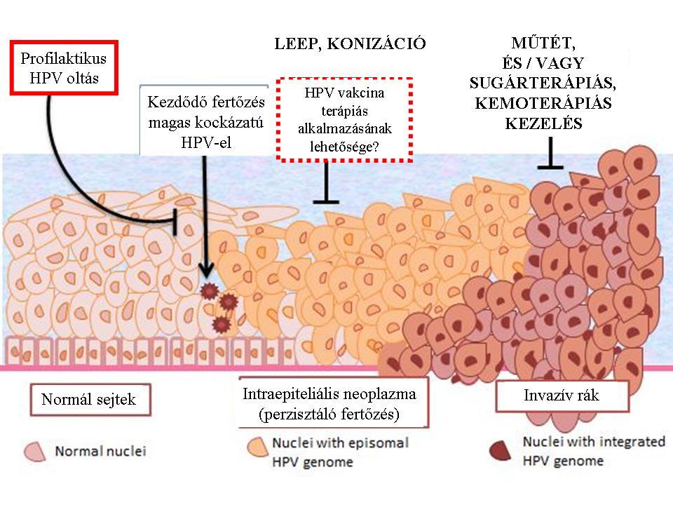 papillomavírus fertőzés vektor hol távolítsa el a papillómát a csecsemőmirigyből