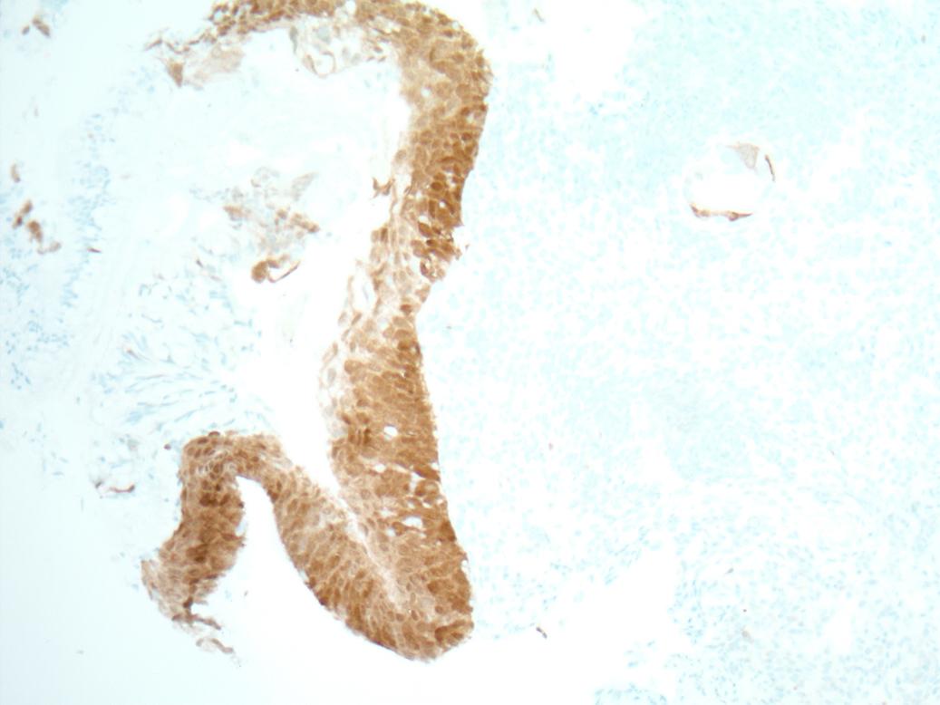 Alacsony fokozatú, squamous intraepithelialis lézió
