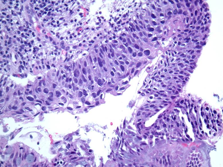 emberi papillomavírus tünetei és oka papillomavírus a lábakban